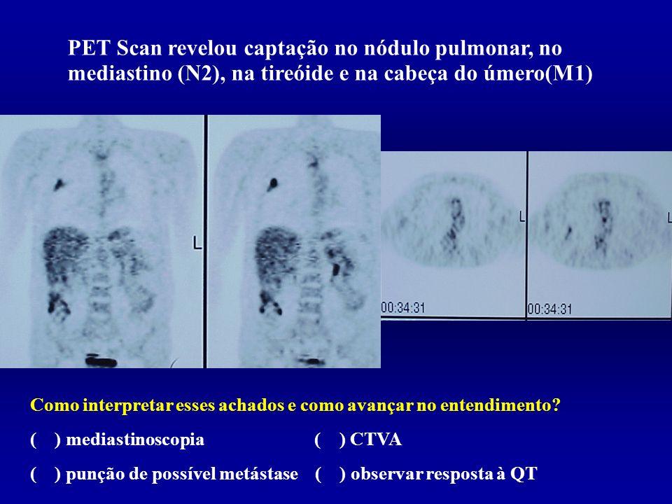 PET Scan revelou captação no nódulo pulmonar, no mediastino (N2), na tireóide e na cabeça do úmero(M1)