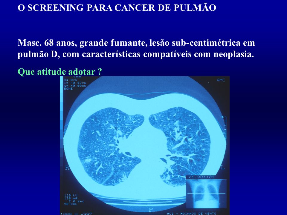 O SCREENING PARA CANCER DE PULMÃO