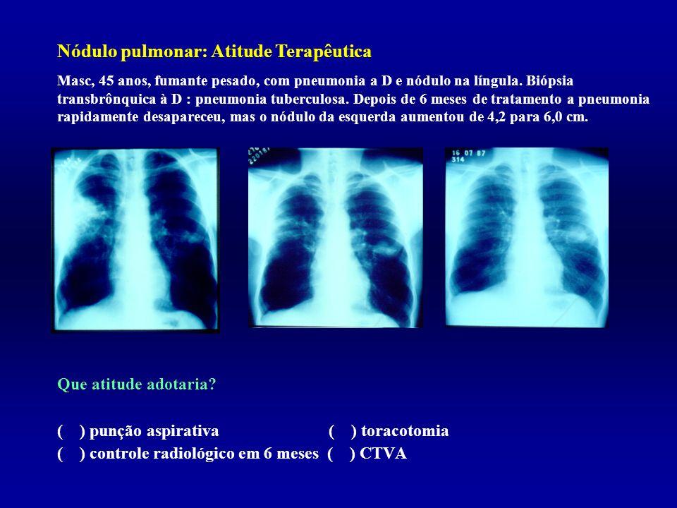 Nódulo pulmonar: Atitude Terapêutica Que atitude adotaria