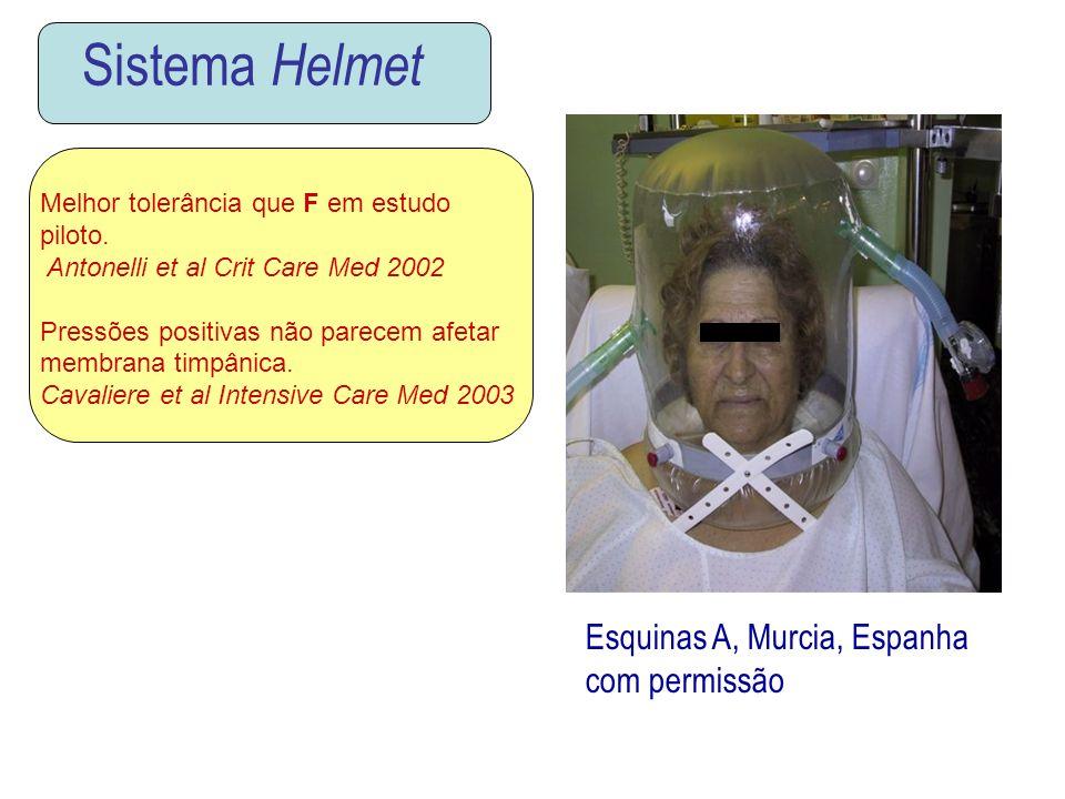 Sistema Helmet Esquinas A, Murcia, Espanha com permissão