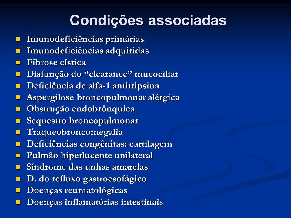 Condições associadas Imunodeficiências primárias