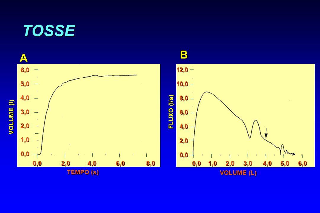TOSSE B A 6,0 5,0 4,0 3,0 2,0 1,0 0,0 FLUXO (l/s) VOLUME (l)