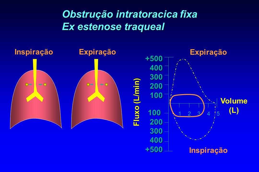 Obstrução intratoracica fixa Ex estenose traqueal