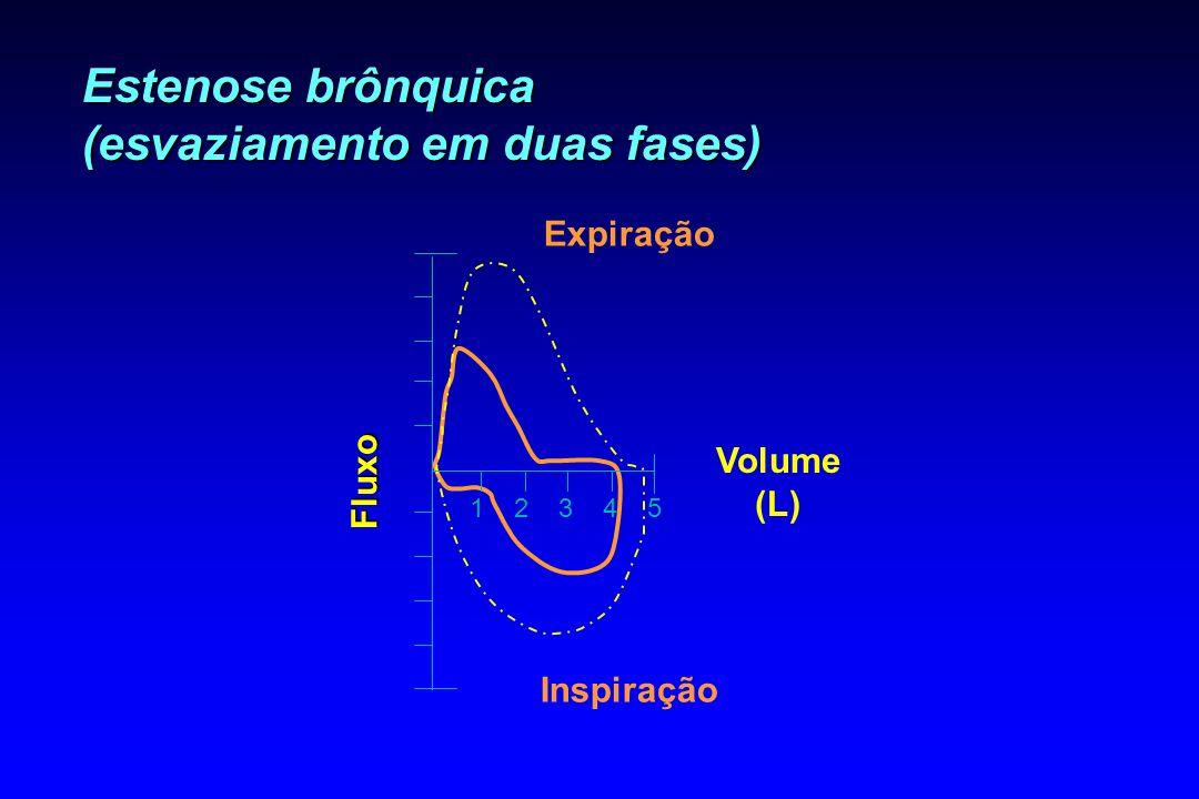 Estenose brônquica (esvaziamento em duas fases)