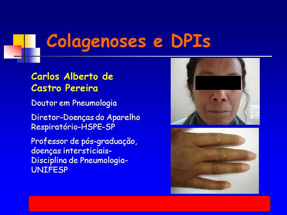 Colagenoses e DPIs Carlos Alberto de Castro Pereira