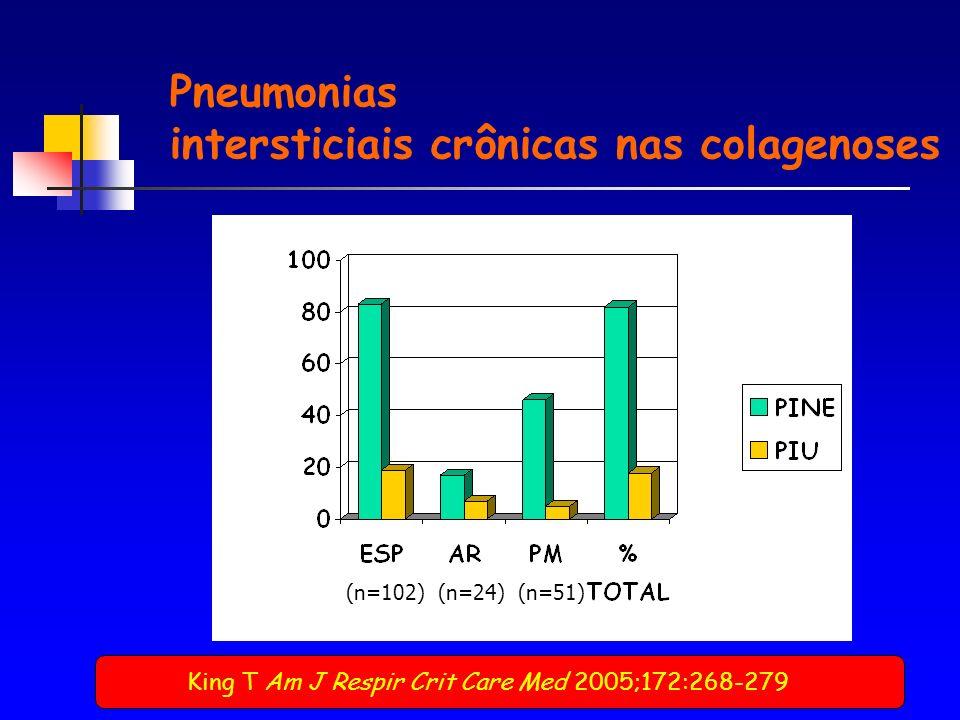 Pneumonias intersticiais crônicas nas colagenoses