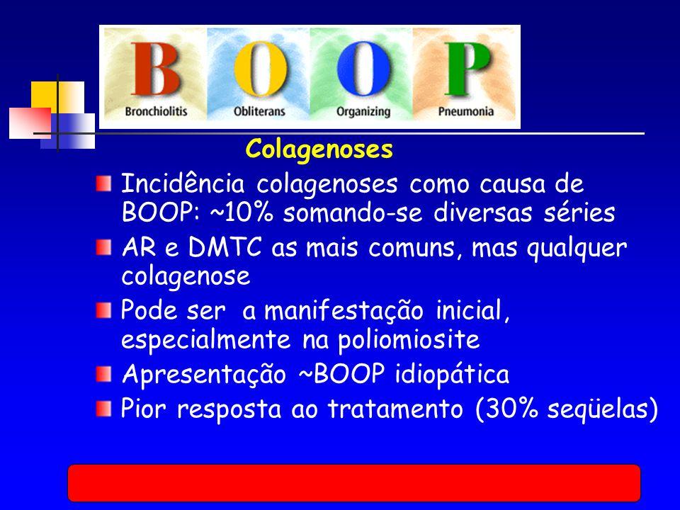 Colagenoses Incidência colagenoses como causa de BOOP: ~10% somando-se diversas séries. AR e DMTC as mais comuns, mas qualquer colagenose.