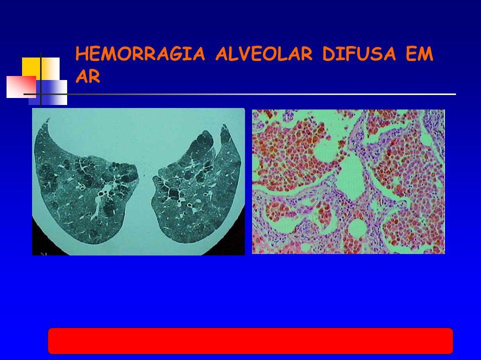 HEMORRAGIA ALVEOLAR DIFUSA EM AR