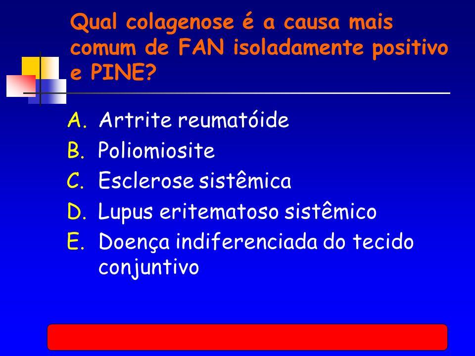 Qual colagenose é a causa mais comum de FAN isoladamente positivo e PINE