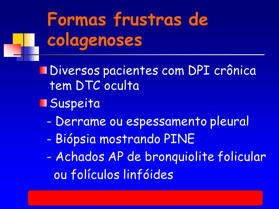 Formas frustras de colagenoses