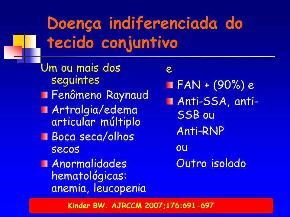 Doença indiferenciada do tecido conjuntivo