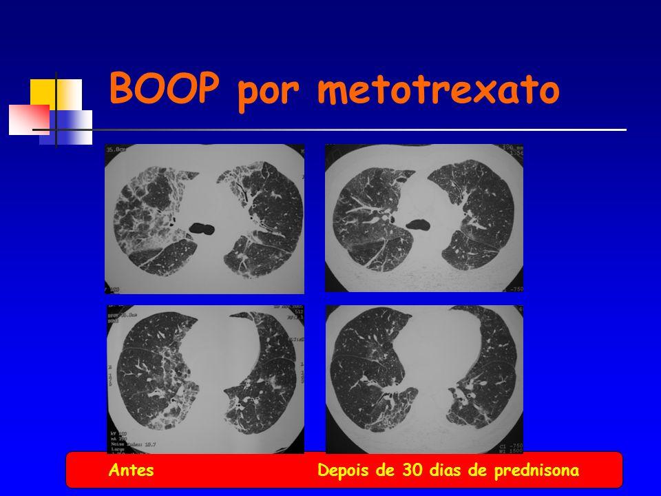 BOOP por metotrexato Antes Depois de 30 dias de prednisona