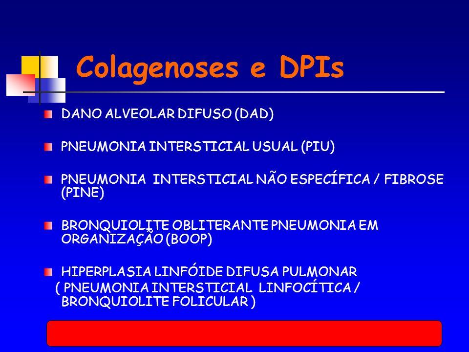 Colagenoses e DPIs DANO ALVEOLAR DIFUSO (DAD)