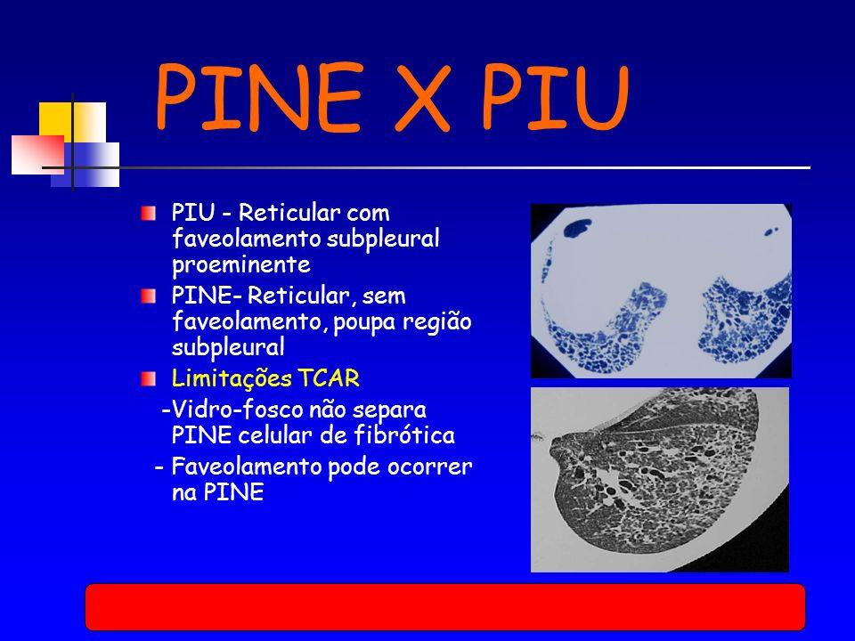 PINE X PIU PIU - Reticular com faveolamento subpleural proeminente