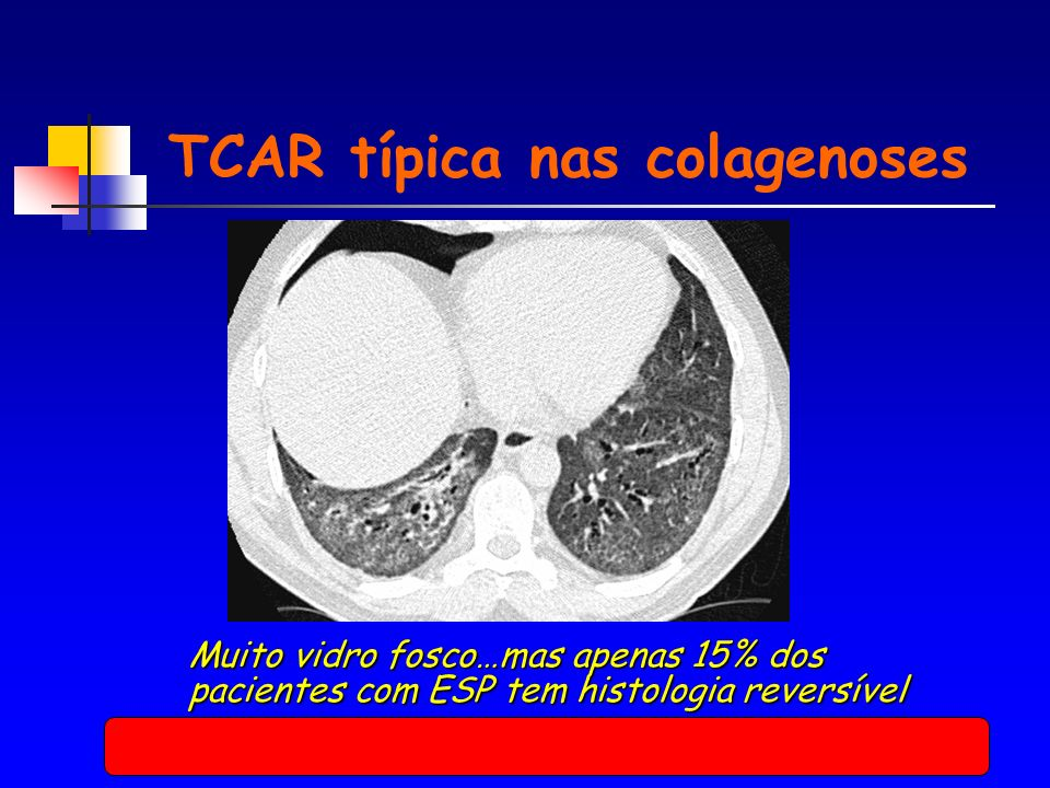 TCAR típica nas colagenoses