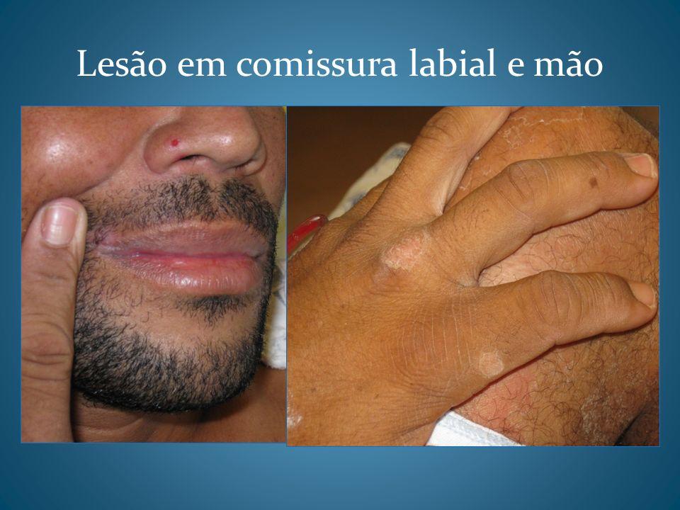 Lesão em comissura labial e mão