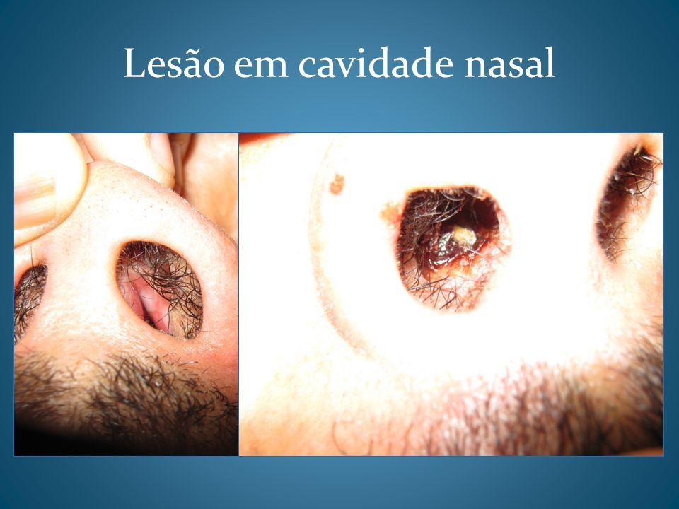 Lesão em cavidade nasal