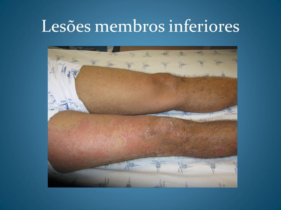 Lesões membros inferiores