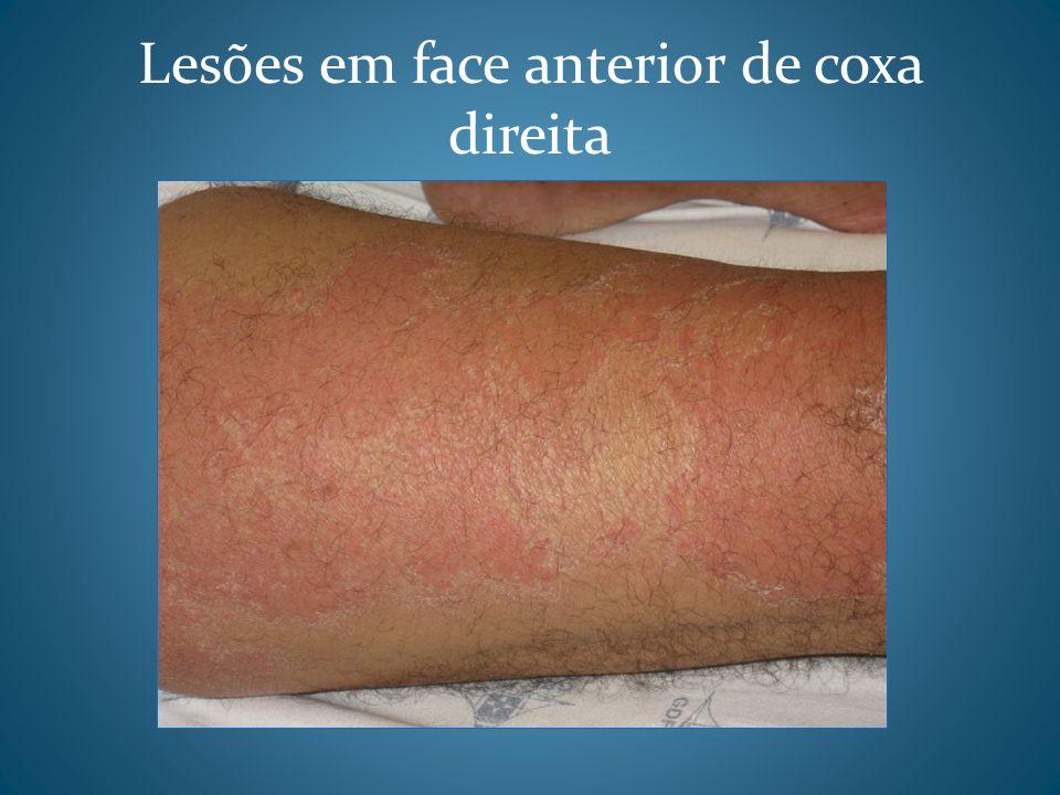 Lesões em face anterior de coxa direita