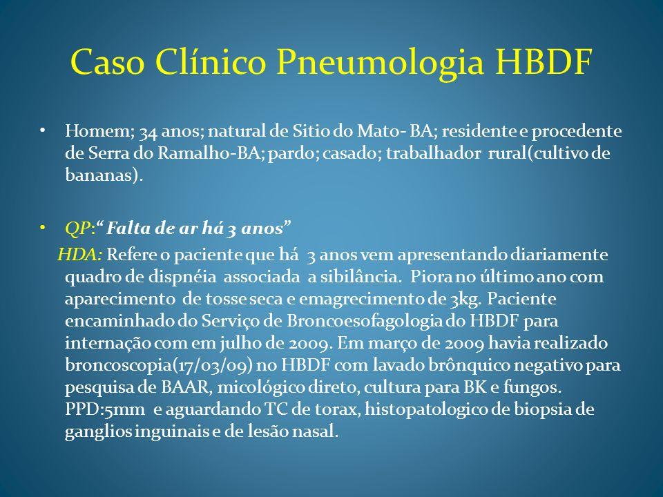 Caso Clínico Pneumologia HBDF