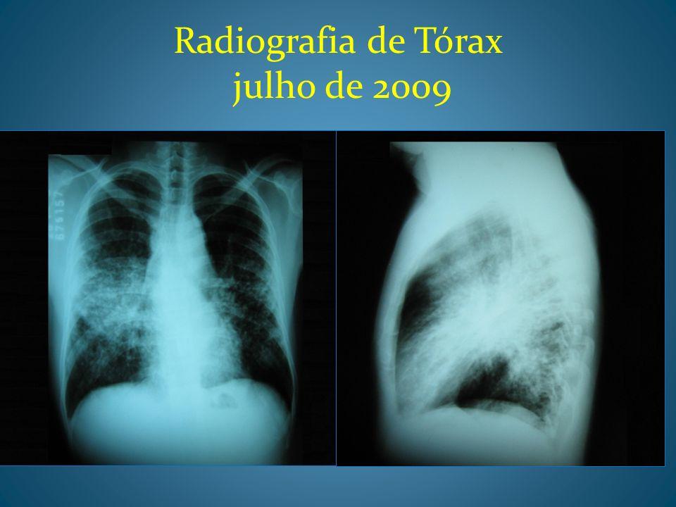 Radiografia de Tórax julho de 2009