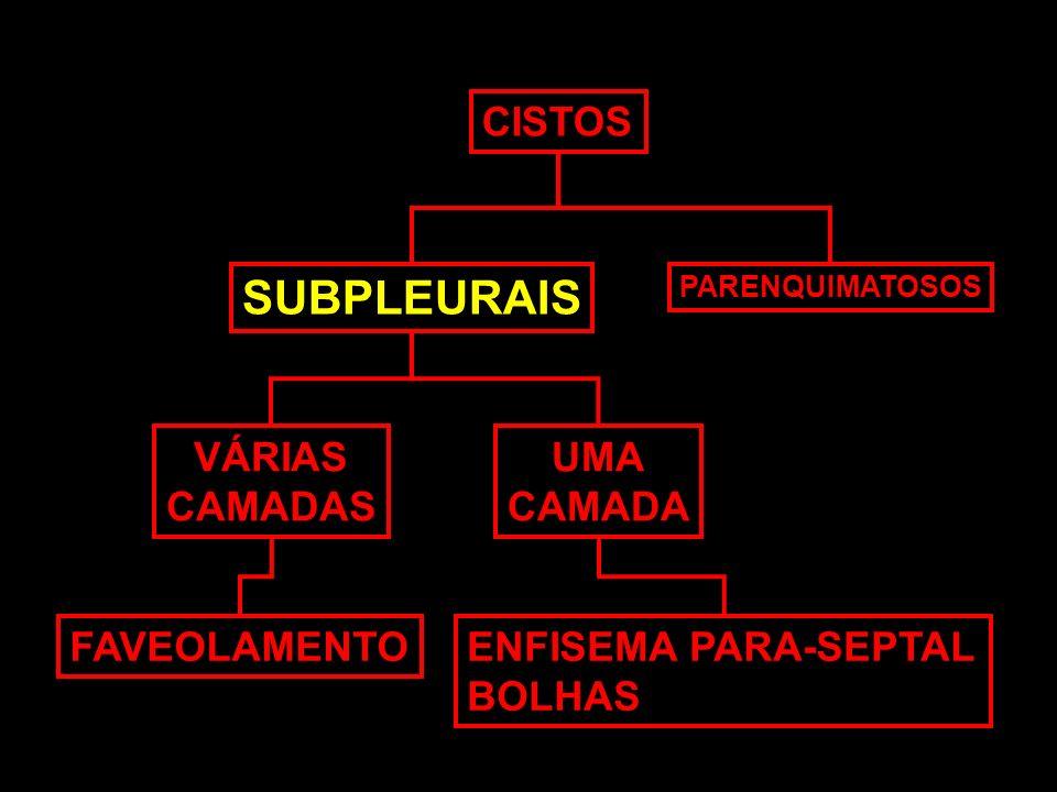 SUBPLEURAIS CISTOS VÁRIAS CAMADAS UMA CAMADA FAVEOLAMENTO