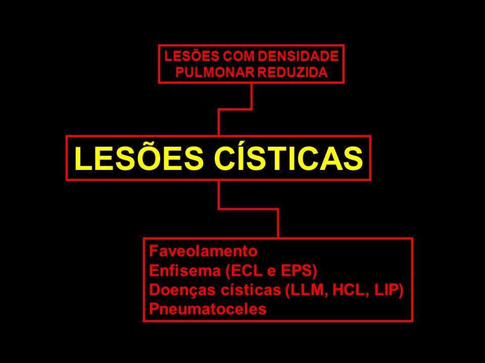 LESÕES CÍSTICAS Faveolamento Enfisema (ECL e EPS)