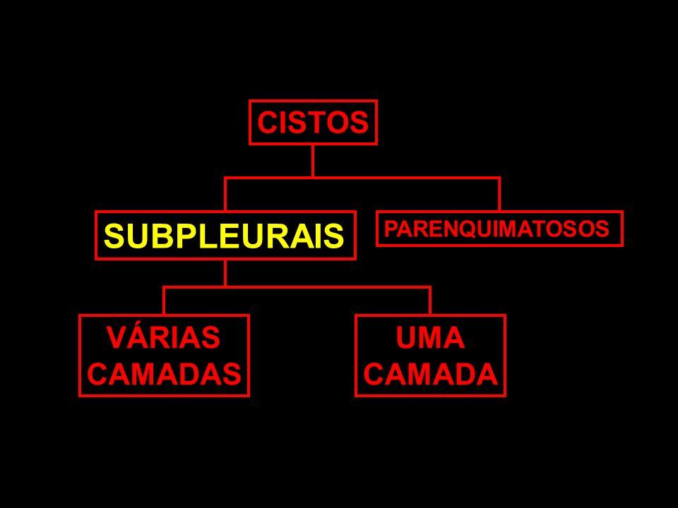 CISTOS SUBPLEURAIS PARENQUIMATOSOS VÁRIAS CAMADAS UMA CAMADA