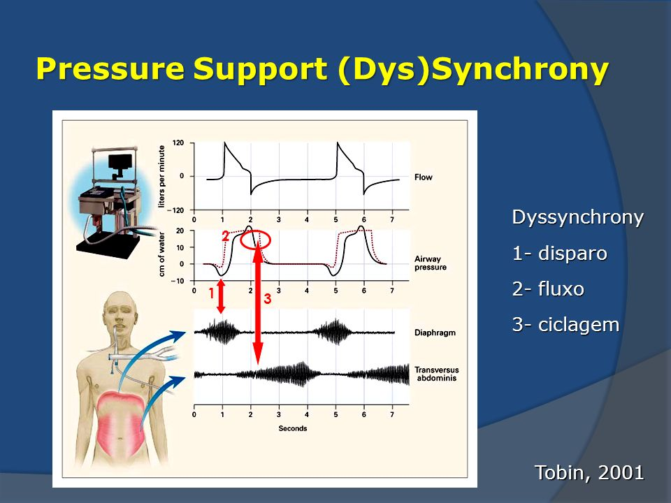 Pressure Support (Dys)Synchrony