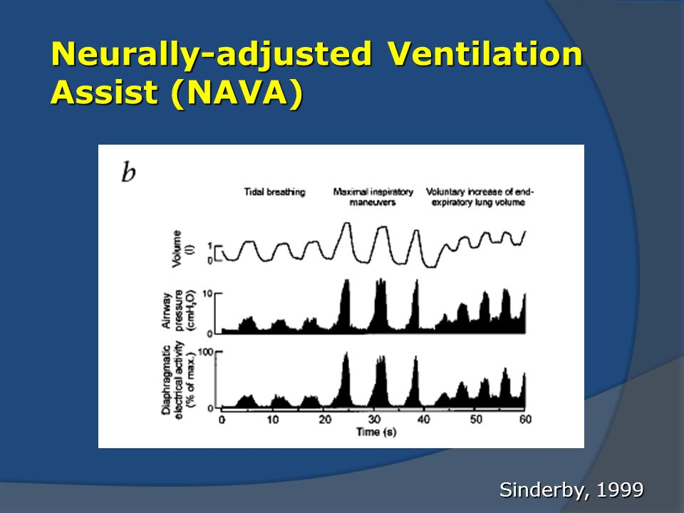 Neurally-adjusted Ventilation Assist (NAVA)