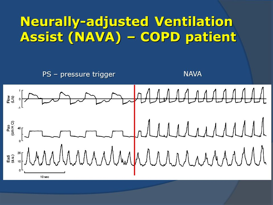 Neurally-adjusted Ventilation Assist (NAVA) – COPD patient