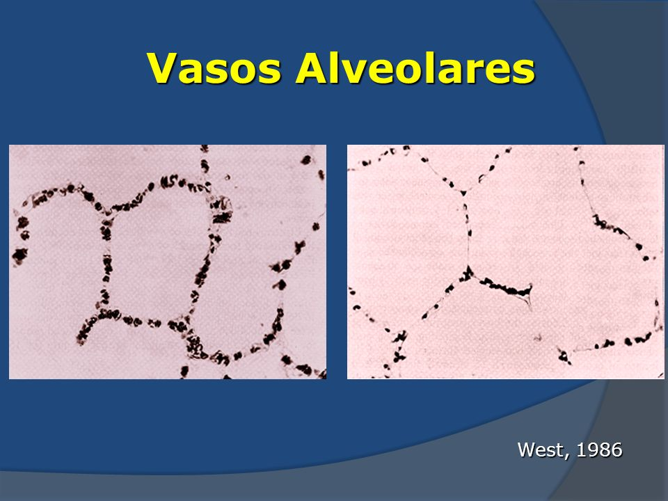 Vasos Alveolares West, 1986