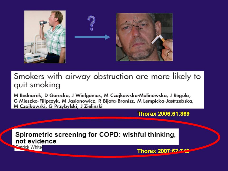 On current evidence, screening to detect mild. COPD is not warranted and will waste. resources that would be better employed to.