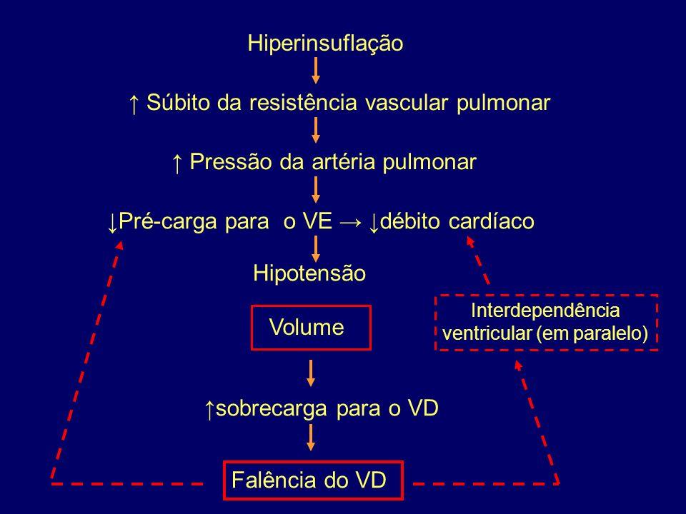 Interdependência ventricular (em paralelo)