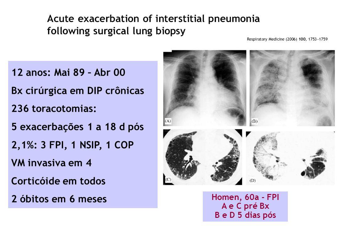 Bx cirúrgica em DIP crônicas 236 toracotomias: