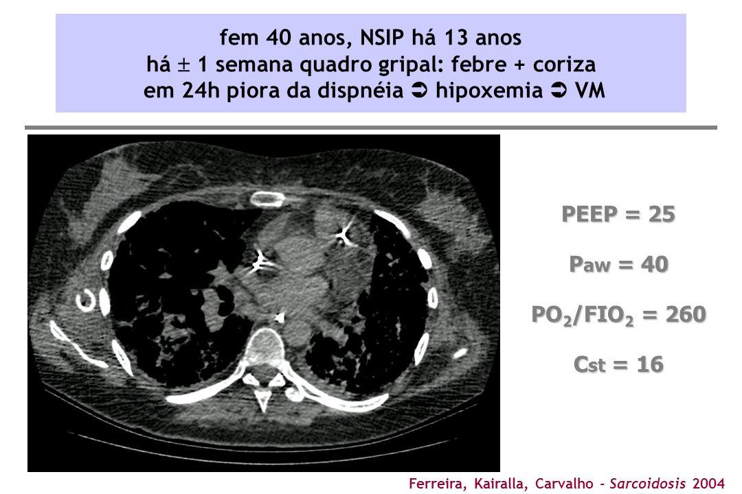 fem 40 anos, NSIP há 13 anos há  1 semana quadro gripal: febre + coriza em 24h piora da dispnéia  hipoxemia  VM