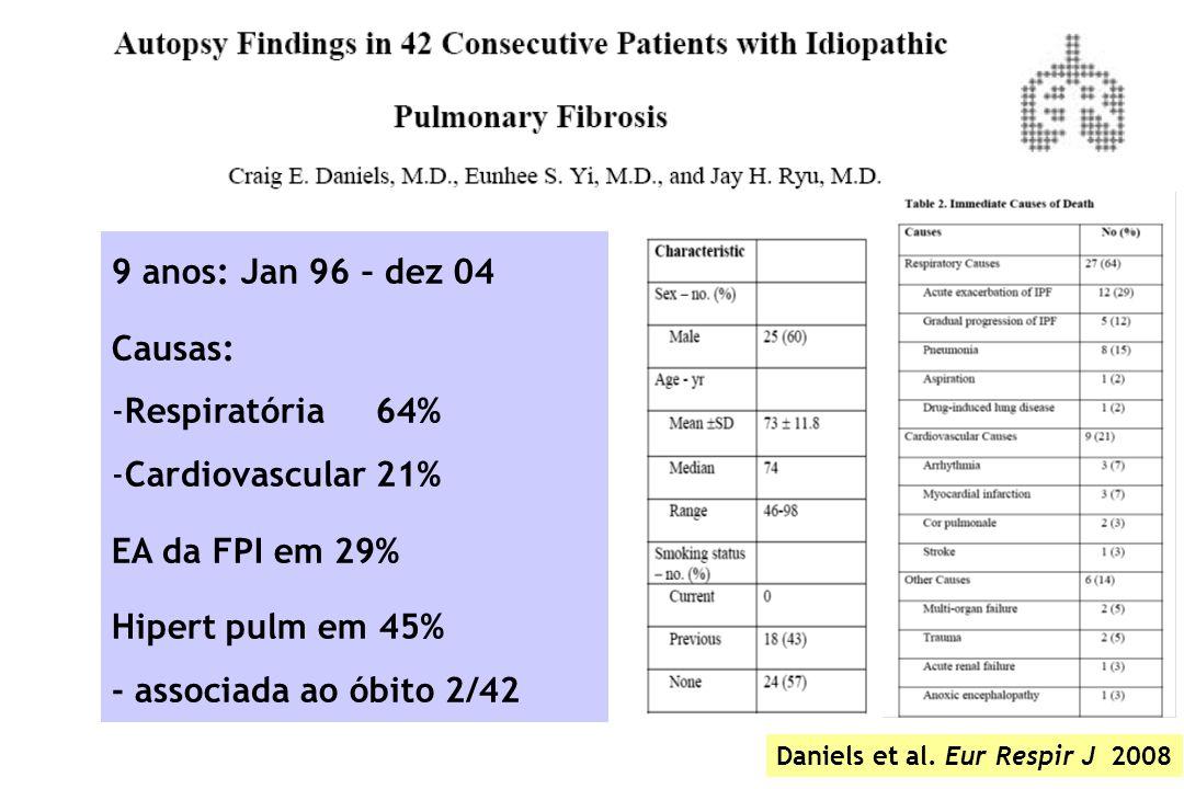 9 anos: Jan 96 – dez 04 Causas: Respiratória 64% Cardiovascular 21%