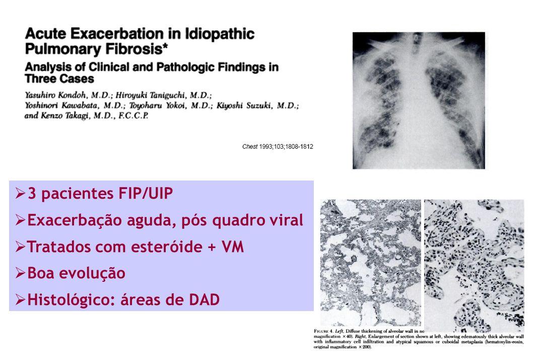 3 pacientes FIP/UIP Exacerbação aguda, pós quadro viral. Tratados com esteróide + VM. Boa evolução.