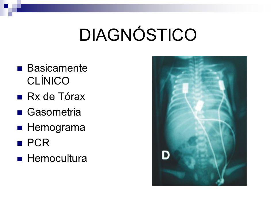 DIAGNÓSTICO Basicamente CLÍNICO Rx de Tórax Gasometria Hemograma PCR