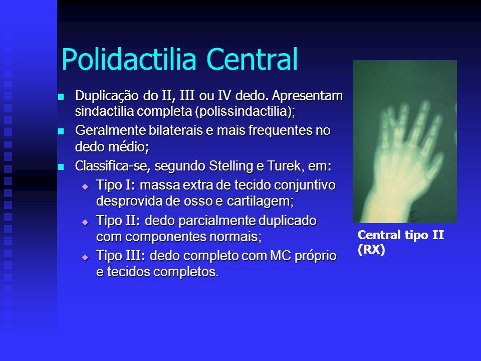 Polidactilia Central Duplicação do II, III ou IV dedo. Apresentam sindactilia completa (polissindactilia);