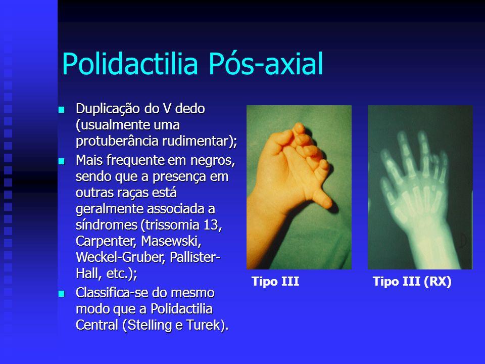 Polidactilia Pós-axial