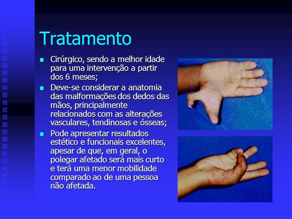 Tratamento Cirúrgico, sendo a melhor idade para uma intervenção a partir dos 6 meses;