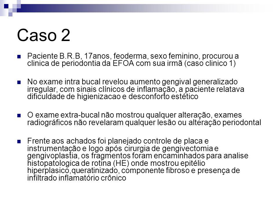 Caso 2 Paciente B.R.B, 17anos, feoderma, sexo feminino, procurou a clinica de periodontia da EFOA com sua irmã (caso clinico 1)