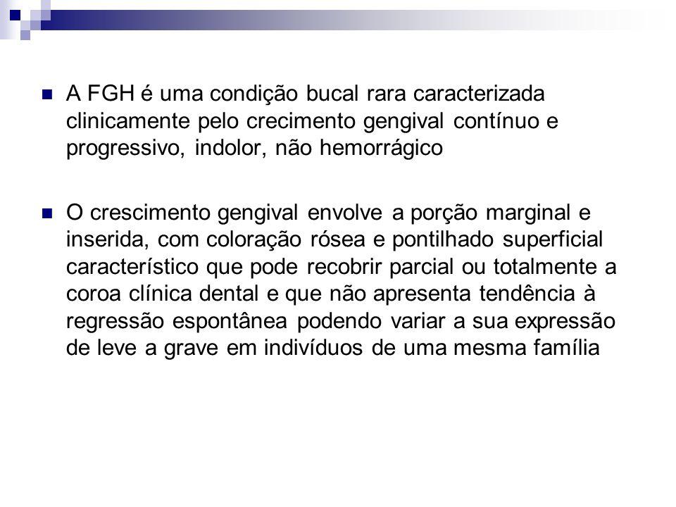 A FGH é uma condição bucal rara caracterizada clinicamente pelo crecimento gengival contínuo e progressivo, indolor, não hemorrágico