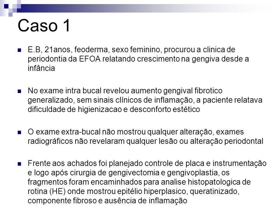 Caso 1 E.B, 21anos, feoderma, sexo feminino, procurou a clinica de periodontia da EFOA relatando crescimento na gengiva desde a infância.