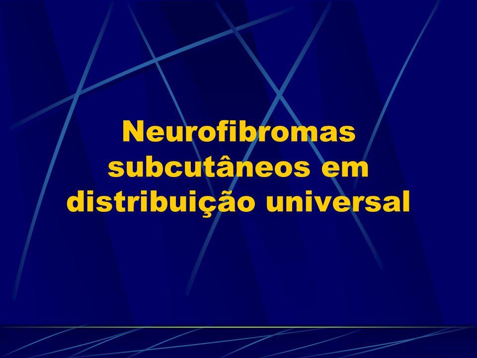 Neurofibromas subcutâneos em distribuição universal