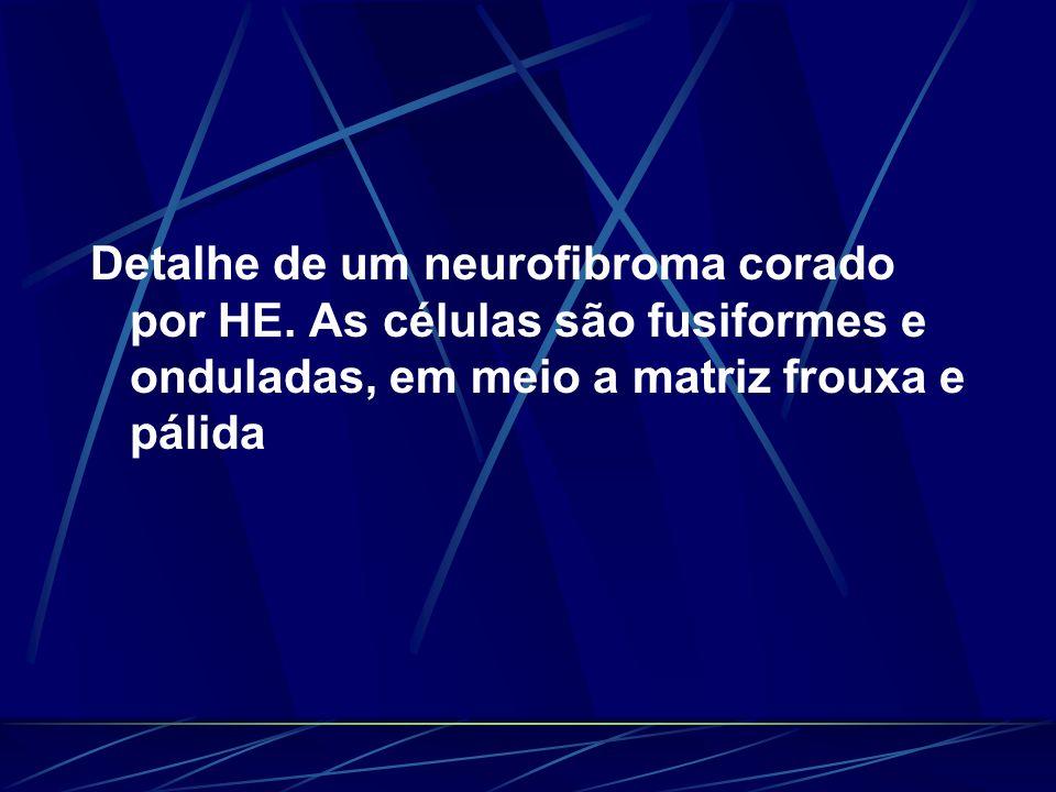 Detalhe de um neurofibroma corado por HE