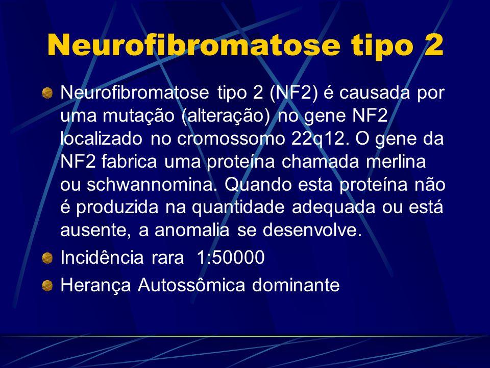 Neurofibromatose tipo 2