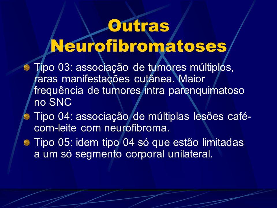 Outras Neurofibromatoses