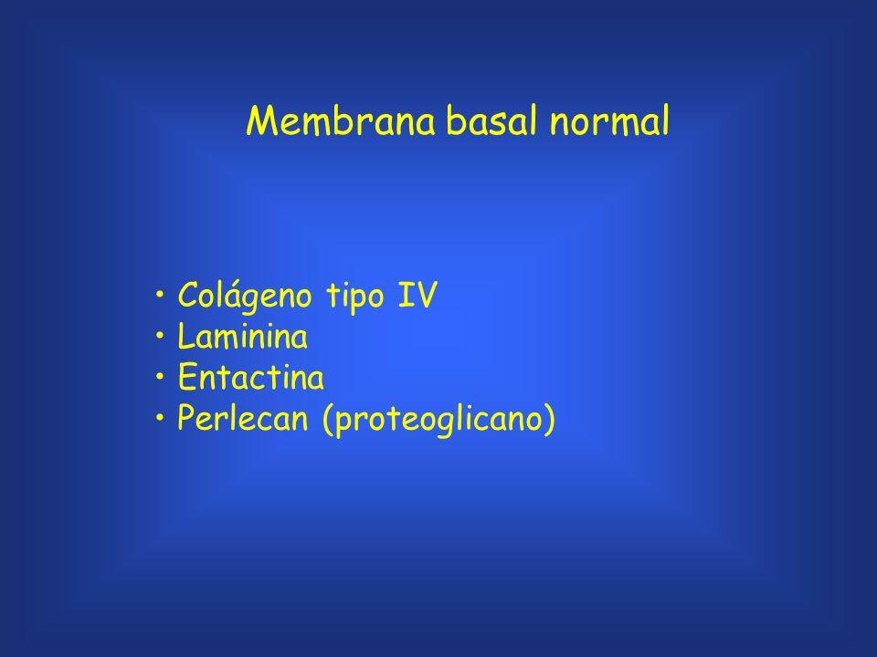 Membrana basal normal Colágeno tipo IV Laminina Entactina